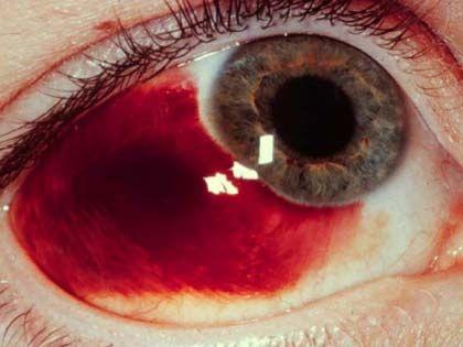 Occhio rosso