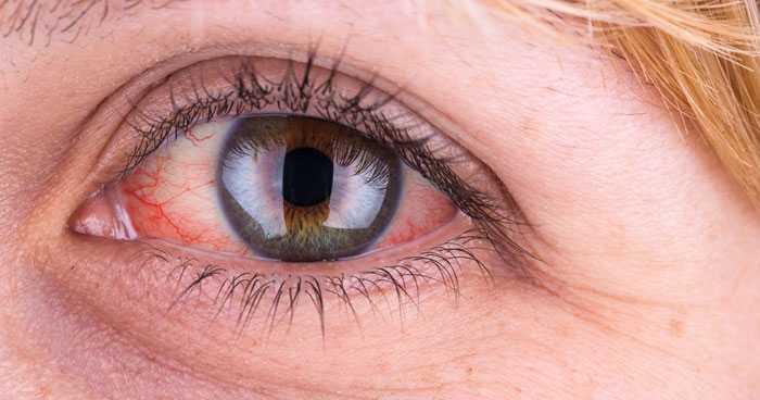 Occhio rosso cosa può essere