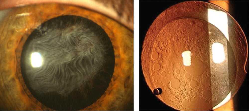 Seconda cataratta yag laser trattamenti Dottor Fabrizio Scotti
